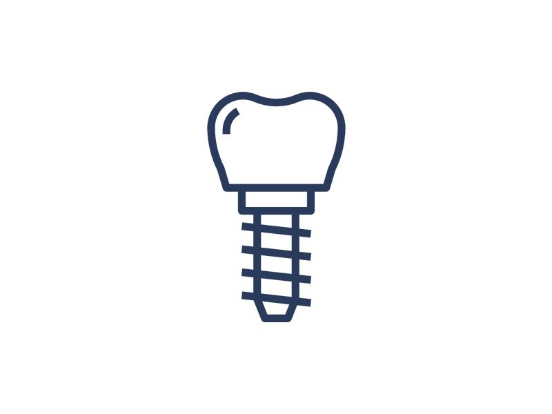 Implantul Dentar